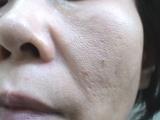 ★鈴木ハーブ研究所★リッチモイスチュアクリーム肌美活 体験レポート(2)