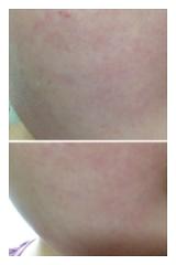 【小鼻の黒ずみ】サヨナラ宣言!! 新感覚の化粧水『ピュアイオンミスト』の画像(2枚目)