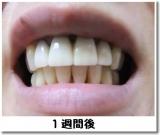 モニプラ『薬用パール ホワイト プロ EX』