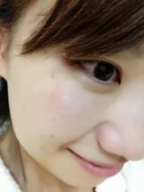 ポイントマジックPROで美肌に♡の画像(4枚目)