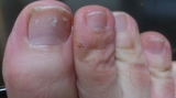 「足の爪です」の画像(1枚目)