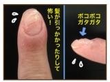 「爪の生え際が整いました。」の画像(1枚目)