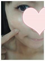 ♡ビタミンC美容♡の画像(4枚目)