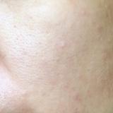 週末は「肌断食」!天然ヒト型フリーセラミド+オーガニックオイルで肌をリセット♪の画像(5枚目)