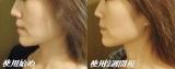 ②FACIAL FITNESS PAO (フェイシャルフィットネス パオ) ☆使用2週間後☆