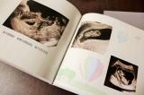 我が家流♪エコー写真の保管方法の画像(2枚目)
