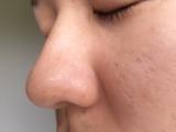 超音波洗顔器の画像(2枚目)