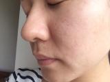 超音波洗顔器の画像(1枚目)