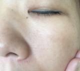 フラーレン化粧品BEAUTY MALL♪アトピーでも美肌になれるスキンケア~保湿とバリアの画像(2枚目)