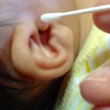 「赤ちゃんの肌を守る「アトピコ」」の画像(8枚目)