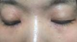 アトピーからキレイな肌に変身♪ダブルフラーレンパックCEグラブリジンマスクの画像(1枚目)