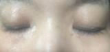アトピーからキレイな肌に変身♪ダブルフラーレンパックCEグラブリジンマスクの画像(6枚目)