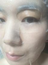 アトピーからキレイな肌に変身♪ダブルフラーレンパックCEグラブリジンマスクの画像(5枚目)