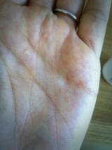 敏感な大人のニキビ肌を整える薬用スキンコンディショナーの画像(3枚目)