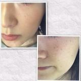 KOSE米肌 肌潤BBクリーム 使用レポート☆ の画像(5枚目)