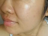ローズヒップオイルで日焼けダメージ肌改善♪の画像(5枚目)