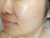 ローズヒップオイルで日焼けダメージ肌改善♪の画像(4枚目)