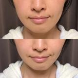効果バッチリ!RIZAP監修の美顔器♡エステナード リフティの画像(11枚目)