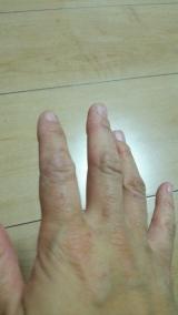 【モニター56】東洋化学株式会社のフィットバンシリーズ「手荒れ予防保護フィルムフィットバンN」の画像(5枚目)