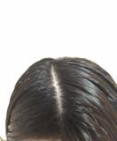 頭皮の写真です