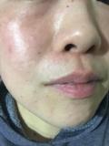 「ワントーン明るい肌に変わりました(*^▽^*)」の画像(1枚目)