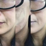 ミュウ フィニッシングパウダー|マンチキン達と私の画像(10枚目)