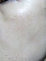 ☆リセプトスキン プレミアムクリーム 使ってみましたぁ♪の画像(7枚目)