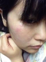 口コミ記事「保湿の新定番!エミューオイル♡-♡看護学生の料理と美容日記♡」の画像