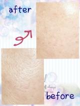 「肌老化を根本からリセット!アンプルール ラグジュアリーホワイト ローションAOII」の画像(5枚目)