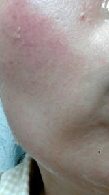 全然パチパチしないのに、みるみる肌が活性化!奇跡のジェルパック♪グレースアイコの炭酸パックの画像(18枚目)