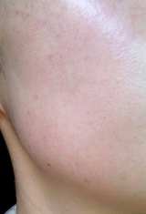 全然パチパチしないのに、みるみる肌が活性化!奇跡のジェルパック♪グレースアイコの炭酸パックの画像(23枚目)