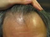 頭皮、髪が気になる方に飲む育毛サプリ:ウエルカミング①の画像(6枚目)