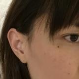 マルガレッタの美白オールインワン*アフターの画像(3枚目)