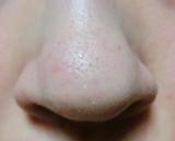 イチゴ鼻をつるつるに♪毛穴ケアしたい敏感肌さん大集合!イオン水で低刺激鼻パックの画像(4枚目)