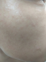 「整菌で治すニキビケア」の画像(7枚目)