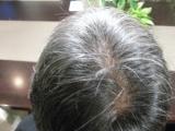 「頭皮、髪が気になる方に飲む育毛サプリ:ウエルカミング③」の画像(3枚目)