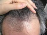 「頭皮、髪が気になる方に飲む育毛サプリ:ウエルカミング③」の画像(2枚目)