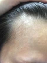 【薬用発毛促進剤】 ビタブリッドCヘアーEXの画像(8枚目)