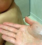 我慢できない乾燥、痒みに!アトピコのスペシャルケアの画像(7枚目)