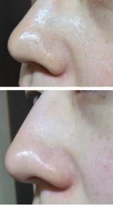 高濃度ビタミンCで洗顔♪の画像(8枚目)