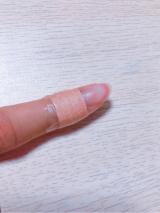 口コミ記事「プロ仕様キズ保護パッドフィットバン」の画像