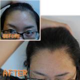 サロン生まれの女性用育毛剤 長春毛精の画像(4枚目)