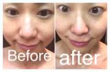 「たった5分ですっぴん美人に大変身♡ジェイエステティックのクリューベルCLクリアマスク」の画像(4枚目)