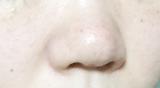 「小鼻の黒ずみに♡JUSO KURO PACK」の画像(9枚目)