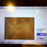 「肌診断」の画像(1枚目)