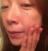 「お肌ふっくらハイドロゲル フェイスマスク アルティメイト」の画像(7枚目)