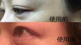 「お肌ふっくらハイドロゲル フェイスマスク アルティメイト」の画像(10枚目)