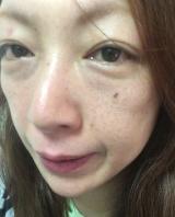 「お肌ふっくらハイドロゲル フェイスマスク アルティメイト」の画像(8枚目)
