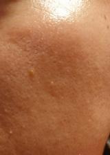 「肌の根本へアプローチ【メトラッセ エクストラオールインワン<美容乳液>】をお試し♪」の画像(10枚目)