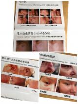 オムニキュアclassic(ボディ用・発酵ウコンジェル)の画像(3枚目)